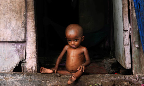 malnourished-indian-child-007